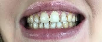 flyuoroz-zubov